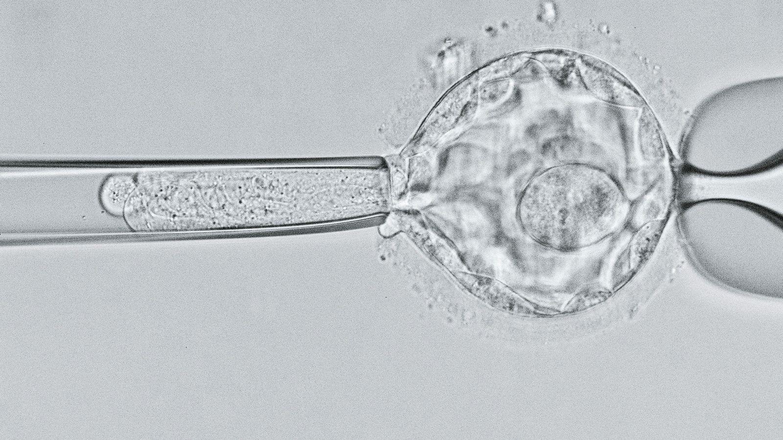 Sur cette image prise au microscope, les scientifiques examinent un embryon de 5 jours au stade ...