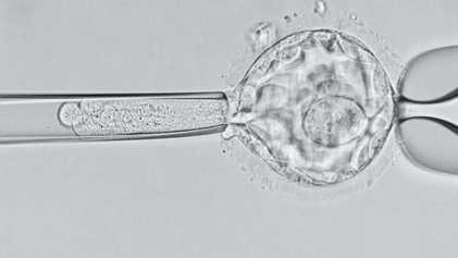 Les premiers bébés génétiquement modifiés pourraient mourir précocement
