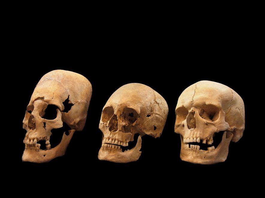 Le mystère des crânes allongés de Bavière bientôt résolu ?