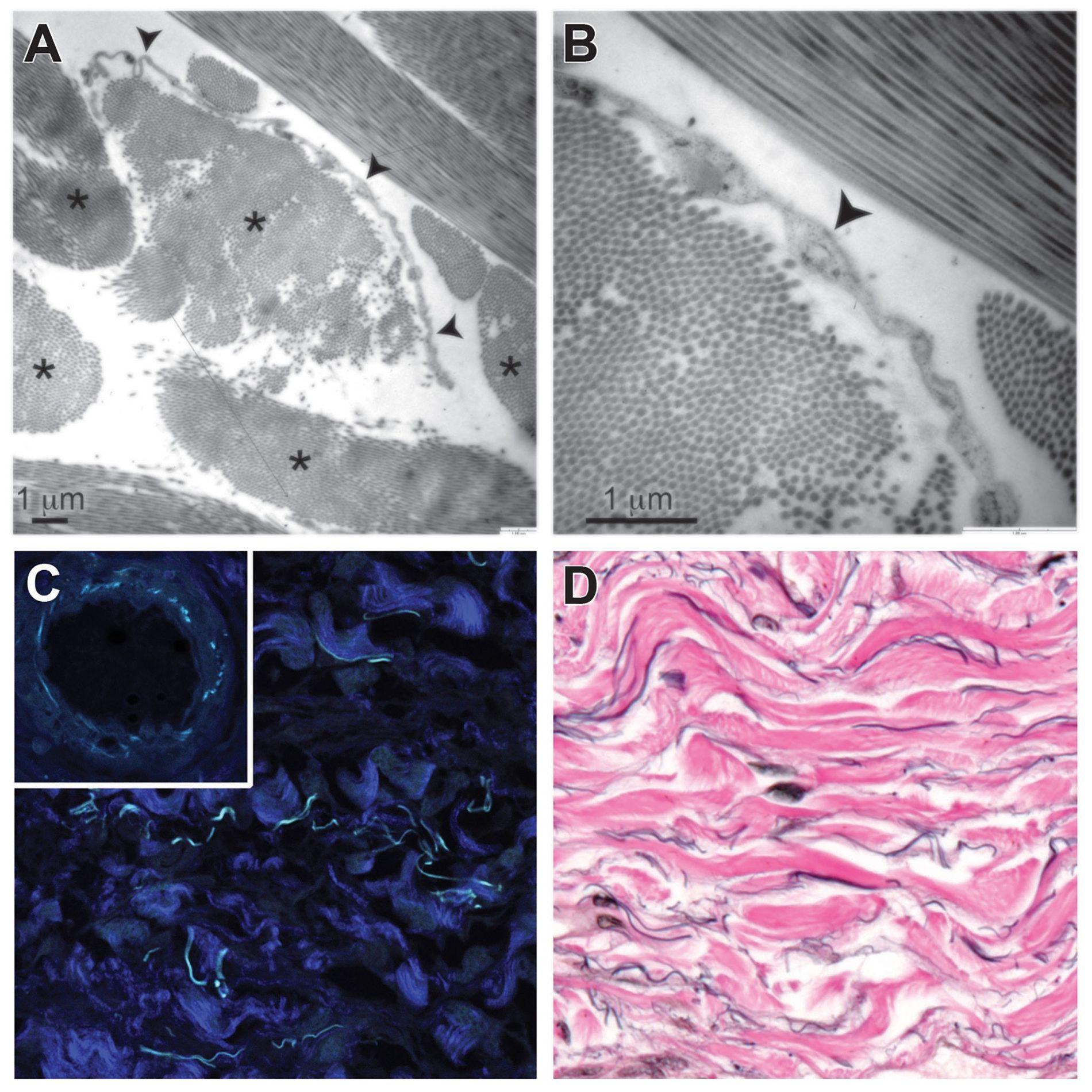 Les faisceaux de collagène sont identifiés par des astérisques (en haut à gauche). Une cellule est indiquée par une flèche (en haut à droite). Les faisceaux de collagène sont identifiés par la couleur bleue foncée et le bleu clair correspond à l'élastine (en bas à gauche). En noir, les fibres d'élastine situées le long des faisceaux de collagène, visibles eux en rose (en bas à droite).