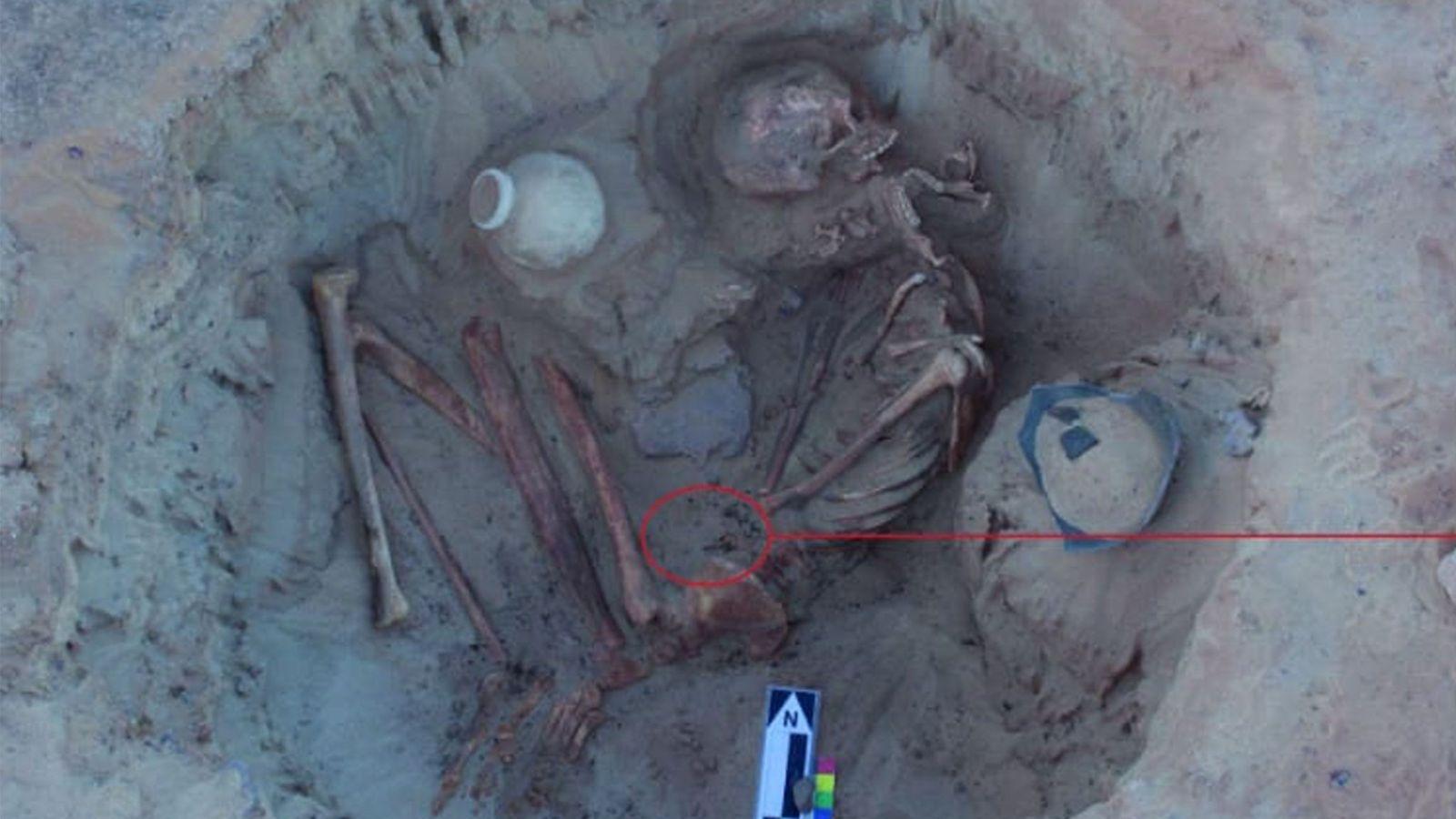 Le squelette d'une femme enceinte de l'Antiquité a été mis au jour près d'Assouan, dans le ...