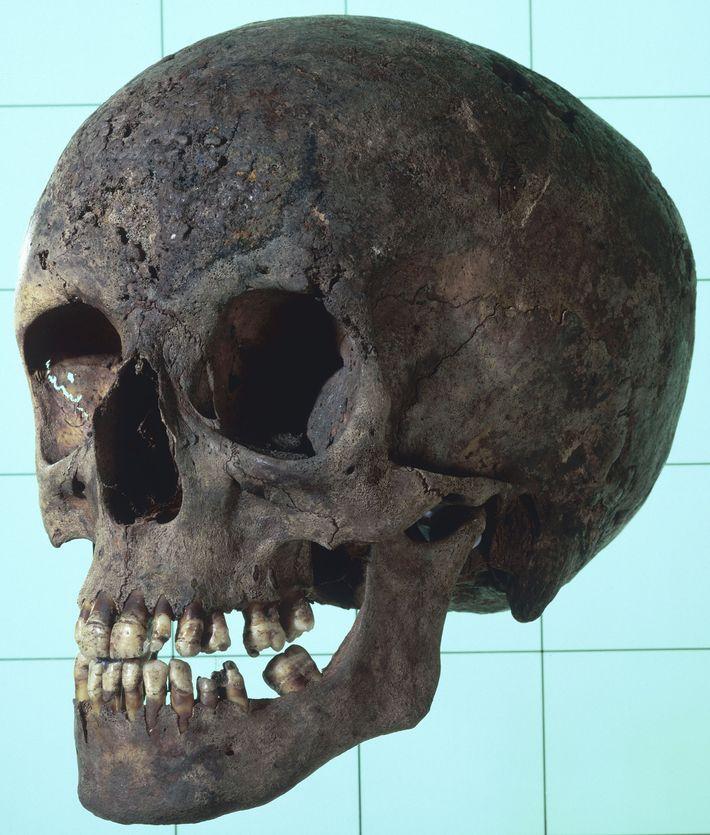 Le crâne de cette femme atteinte de syphilis présente de nombreuses lésions osseuses. L'analyse génétique des ...