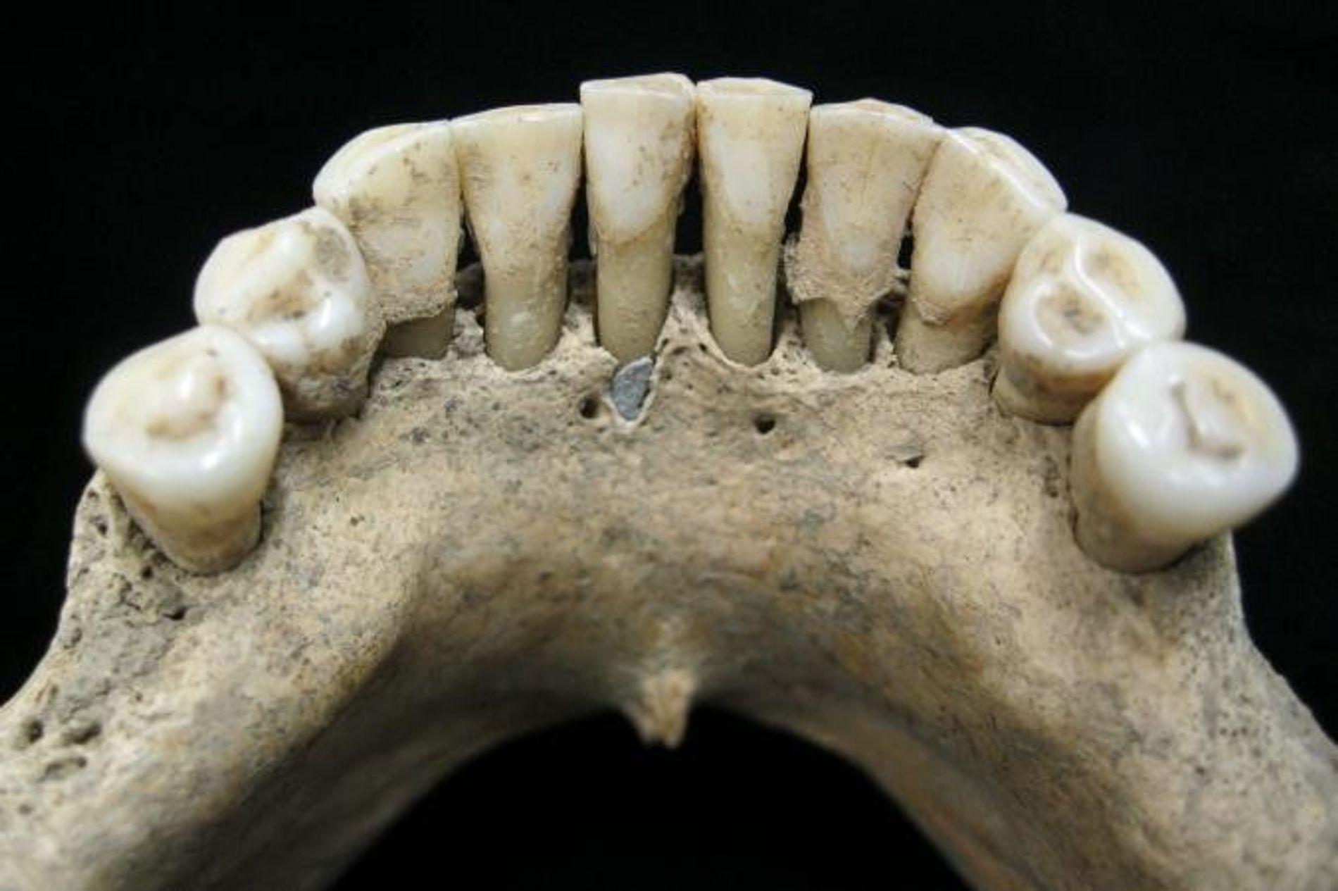 Une particule de lapis-lazuli est coincée dans la plaque dentaire fossilisée d'une femme du Moyen-Âge.