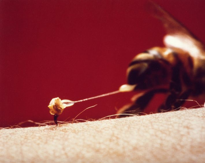 Une abeille laisse son dard sur le bras de sa victime. Les photographies de cet article sont tirées ...