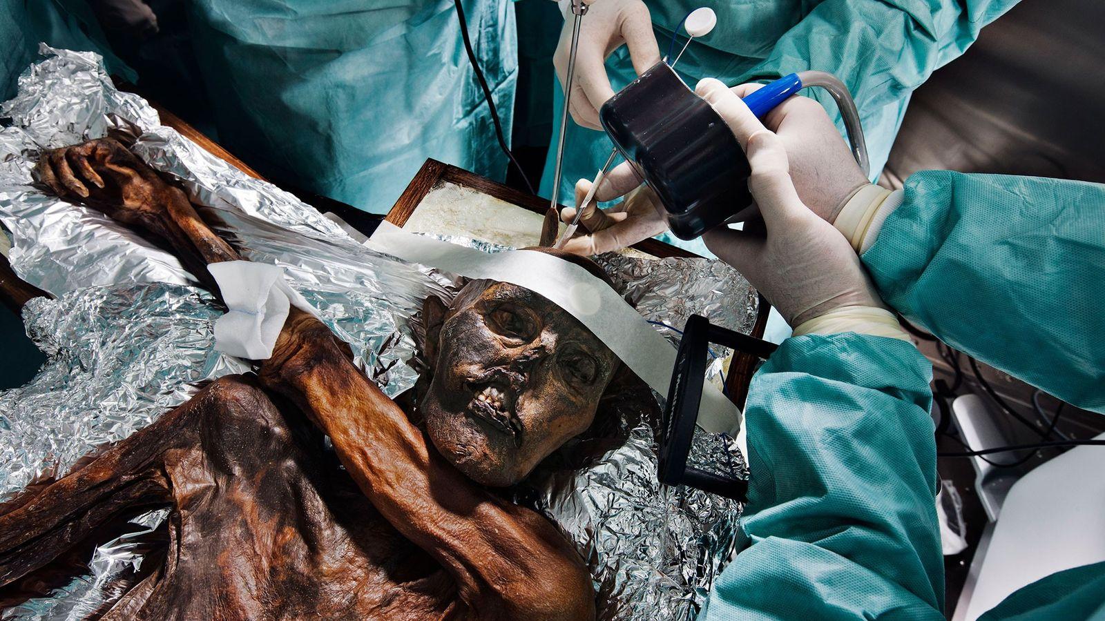 Des scientifiques étudient le corps momifié d'Ötzi âgé de 5300ans à la recherche d'indices sur sa ...