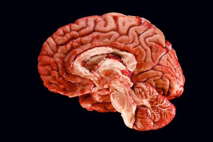 Les longs séjours dans l'espace auraient un impact sur le cerveau. Pour l'instant, les scientifiques ignorent ...