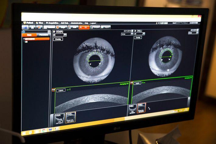 La cornée d'un œil apparaît sur écran lors d'un diagnostic préopératoire réalisé à l'aide de technique ...