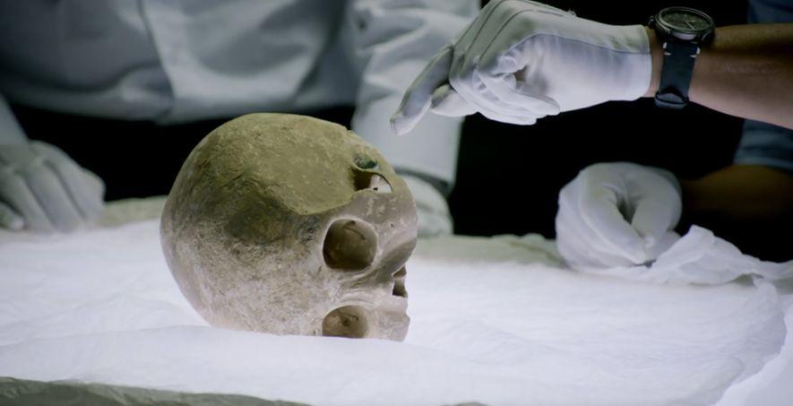 Le trait d'acier d'une arbalète est resté logé dans le crâne de cet homme. Il pourrait ...