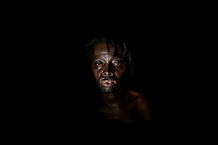 Edson, victime des violences lors des élections de 2008, province de Masvingo « Nous n'avions aucun outil ...