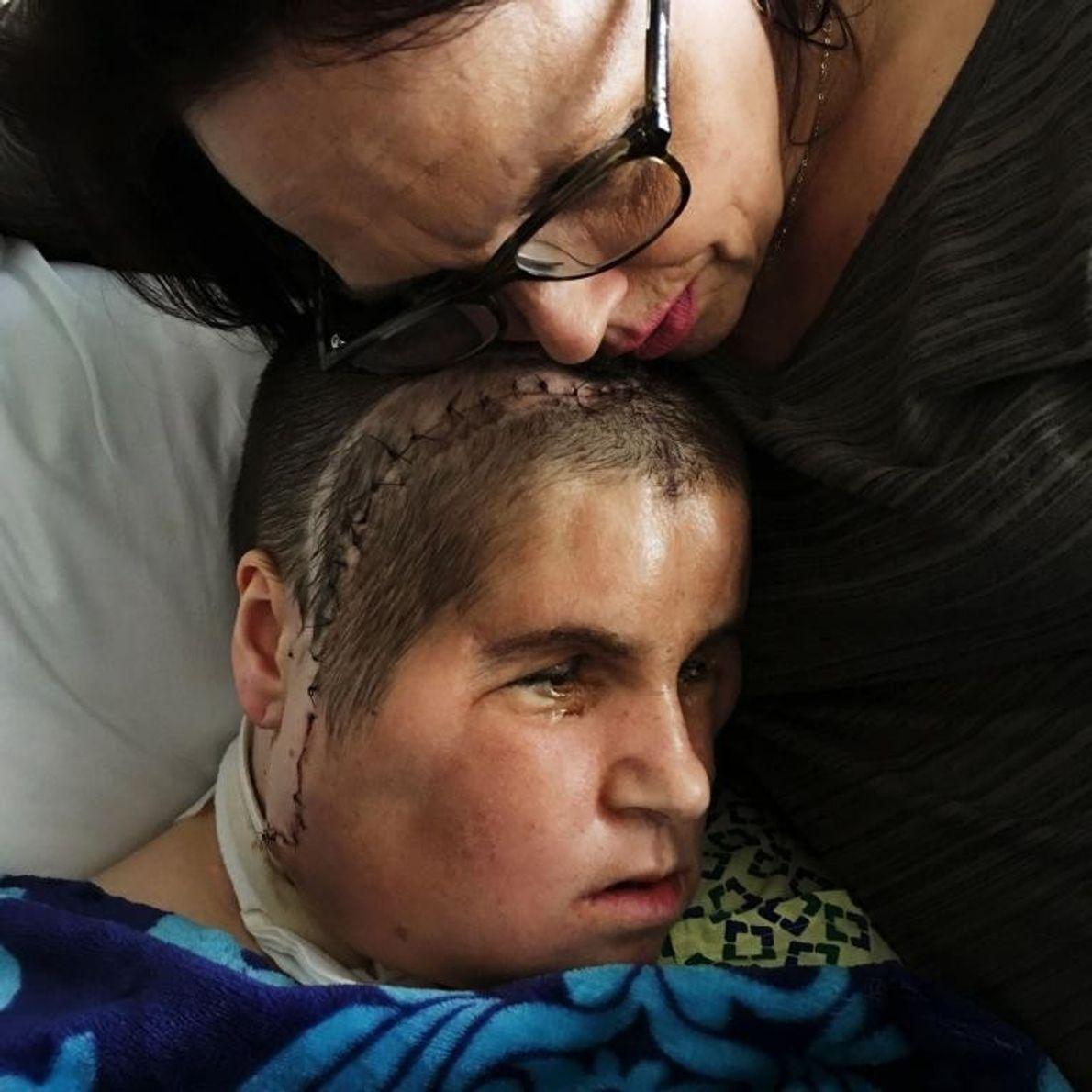 Alesia étreint la tête enflée de Katie à la clinique de Cleveland. Après la chirurgie de ...