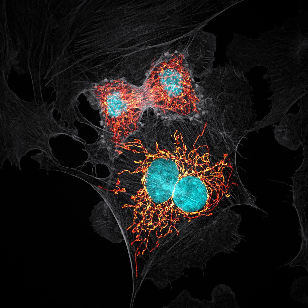 En 1979, des chercheurs ont cultivé des cellules extraites de l'artère pulmonaire d'une jeune vache et ...