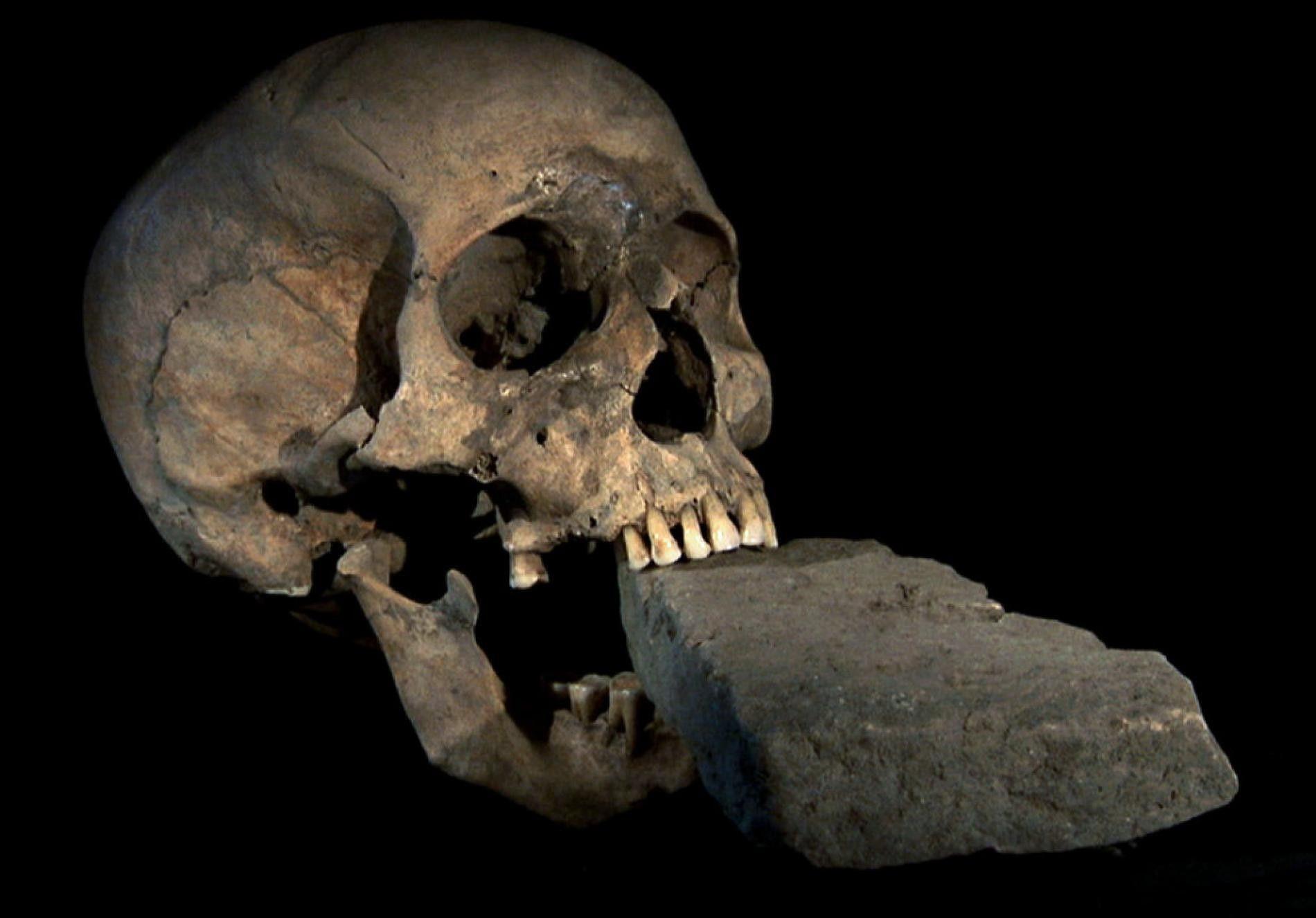 """Le crâne du """"vampire de Venise"""", retrouvé en 2009 dans une tombe de pestiférés à Venise, avait lui-aussi une pierre placée dans sa mâchoire."""