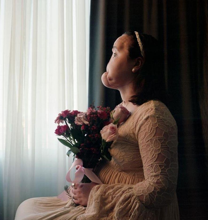 """Katie Stubblefield a posé pour la photographe Maggie Steber avant sa greffe de la face. Elle montre son visage gravement blessé, mais la photographe Maggie Steber voulait aussi capturer """"sa beauté intérieure, sa fierté et sa détermination""""."""