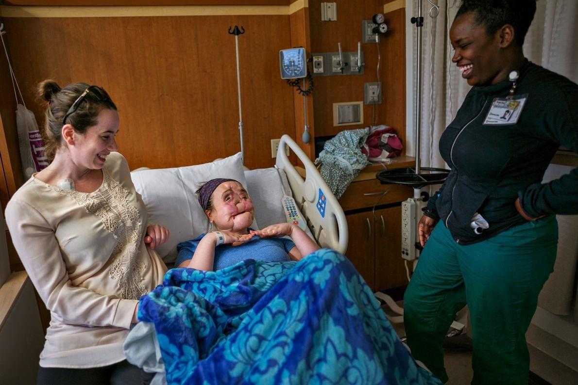 La veille de la chirurgie, Katie, dont le visage endommagé a été reconstruit, montre qu'elle est ...