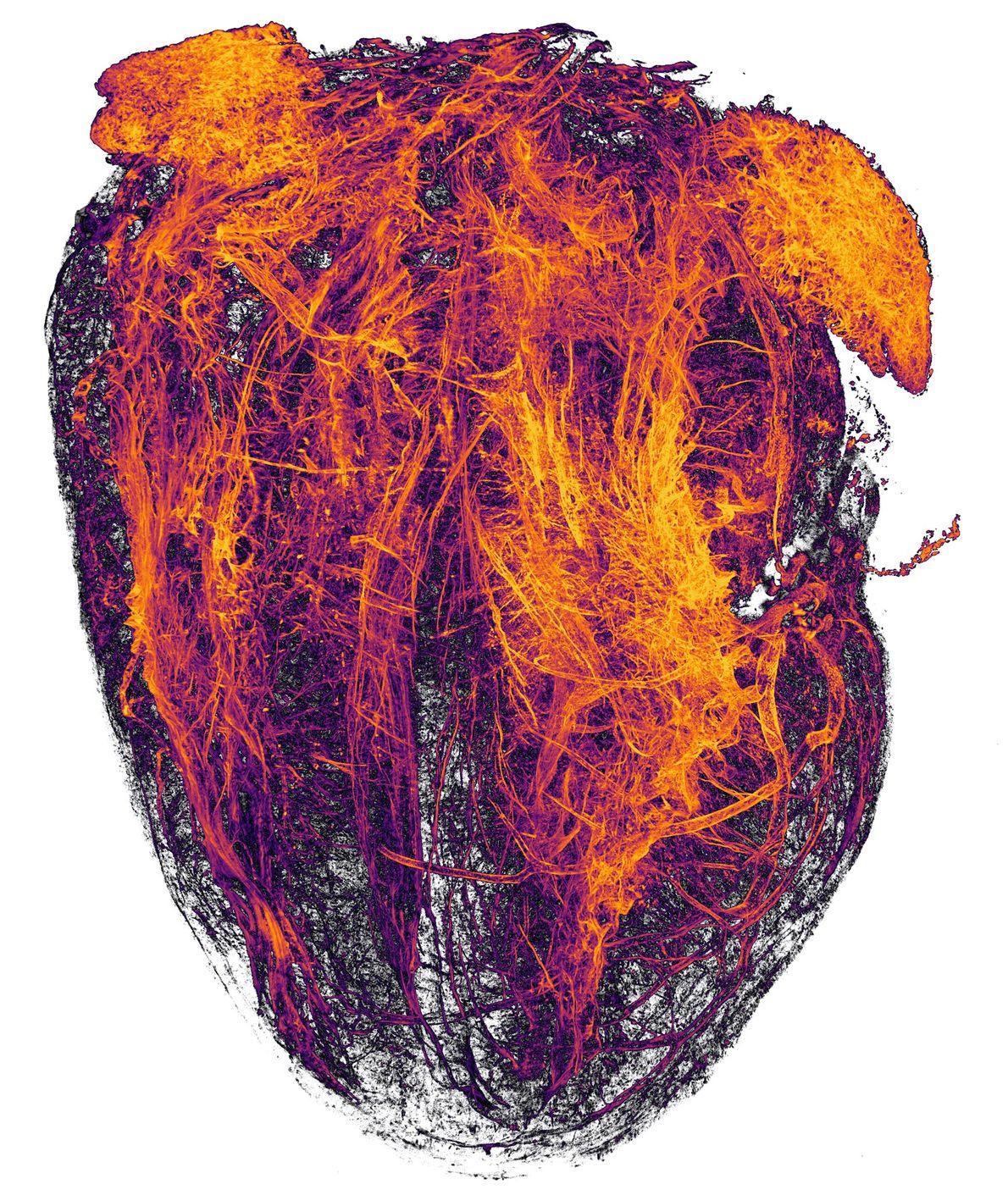 Ces ardents filaments orange imagés par les chercheurs de l'Essen University Hospital sont en fait les ...