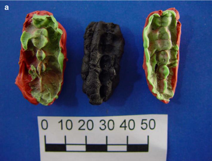 """L'un des """"chewing-gums"""" du site mésolithique d'Huseby Klev, entouré du moulage des empreintes dentaires."""