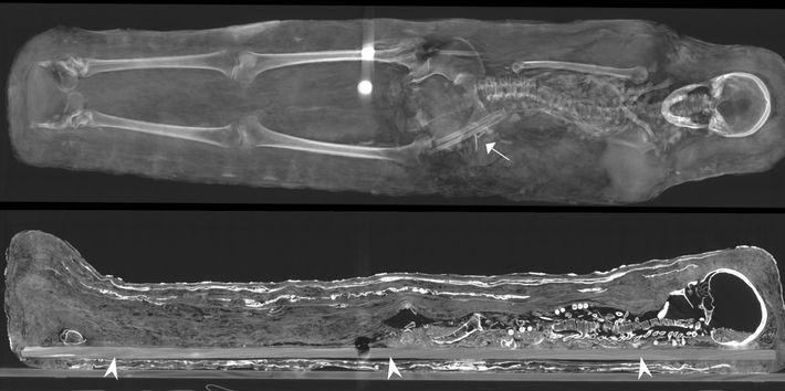 Momie d'une femme. Le scanner permet de visualiser des corps étrangers circulaires, en métal, proches du ...