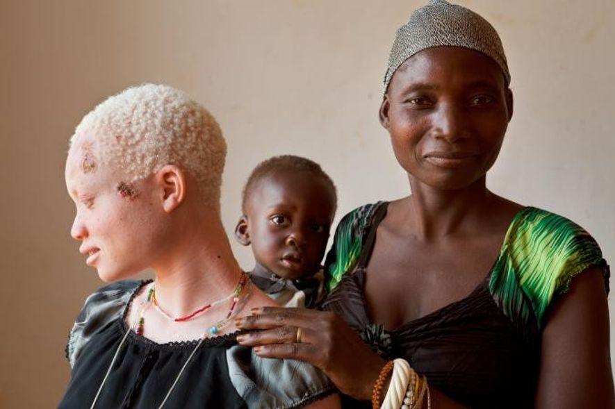 Tanzanie : pourquoi les albinos sont-ils persécutés ?