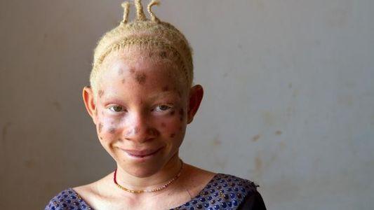 Le quotidien des enfants albinos en Tanzanie