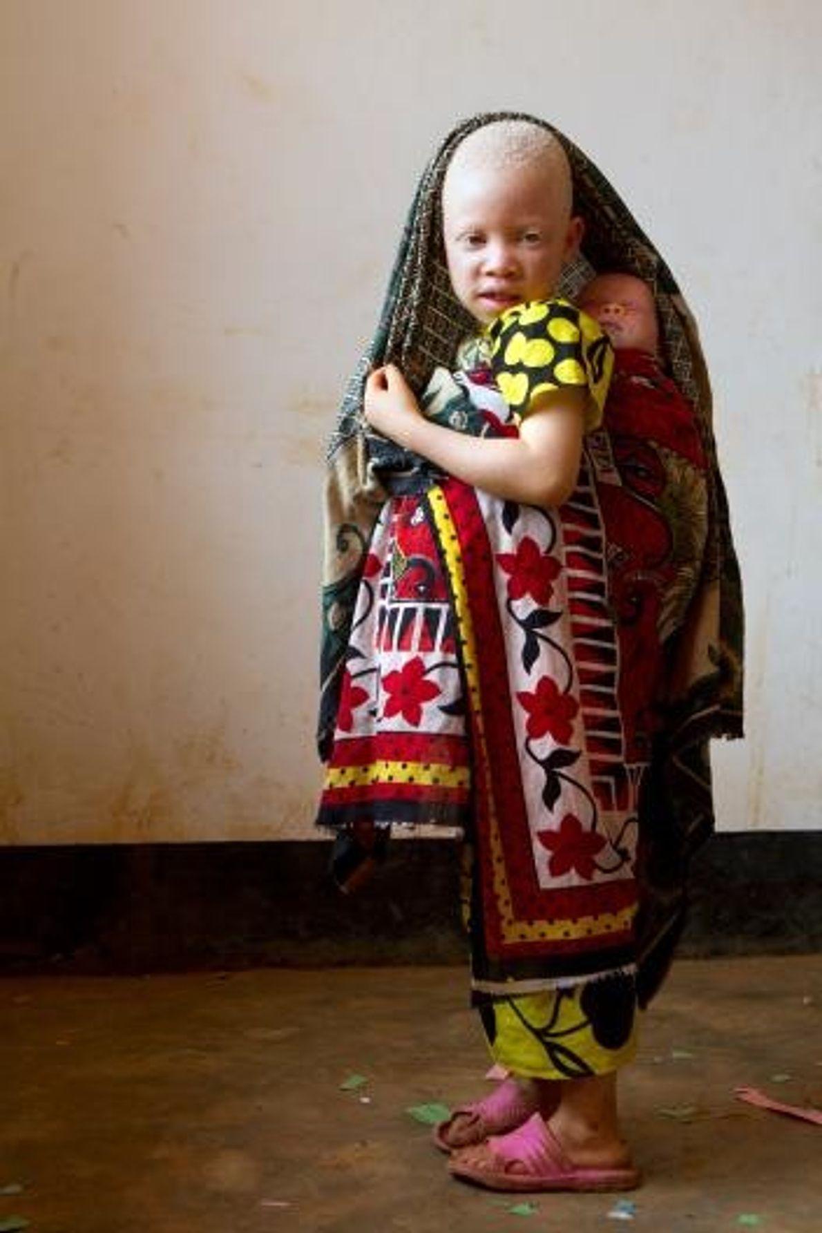 Au centre Kabanga Protectorate, Lightness Philbert porte sur son dos Jessica, une petite fille de trois ...