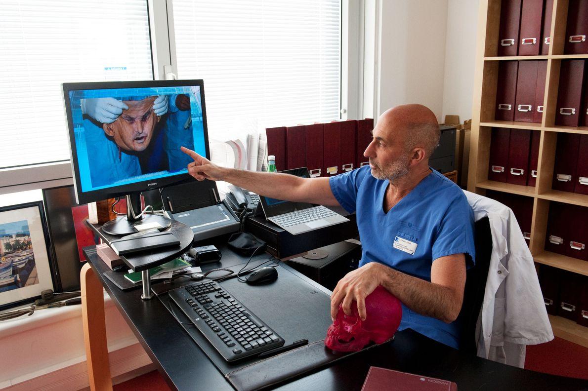 Médecine : la France pionnière de la greffe de visage