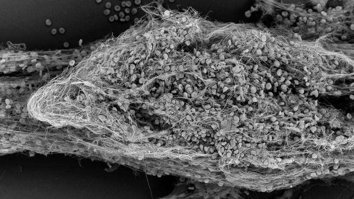 Image tri-dimensionnelle d'un caillot de sang (thrombus) dans une puce-poumons.