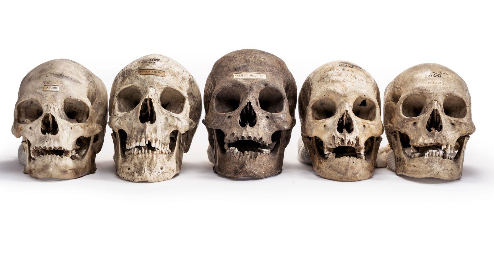 Les crânes de la collection de Samuel Morton, l'un des pères américains du « racisme scientifique ...
