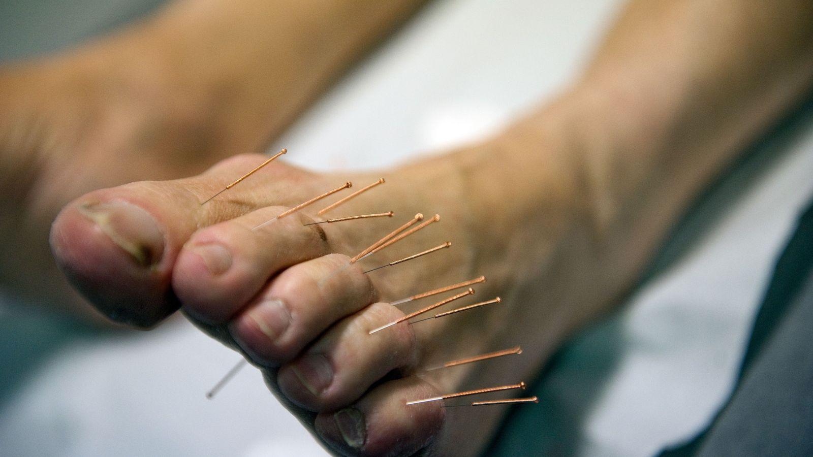 L'acupuncture est utilisée pour traiter les neuropathies entraînées par la chimiothérapie. Elles se caractérisent par des ...