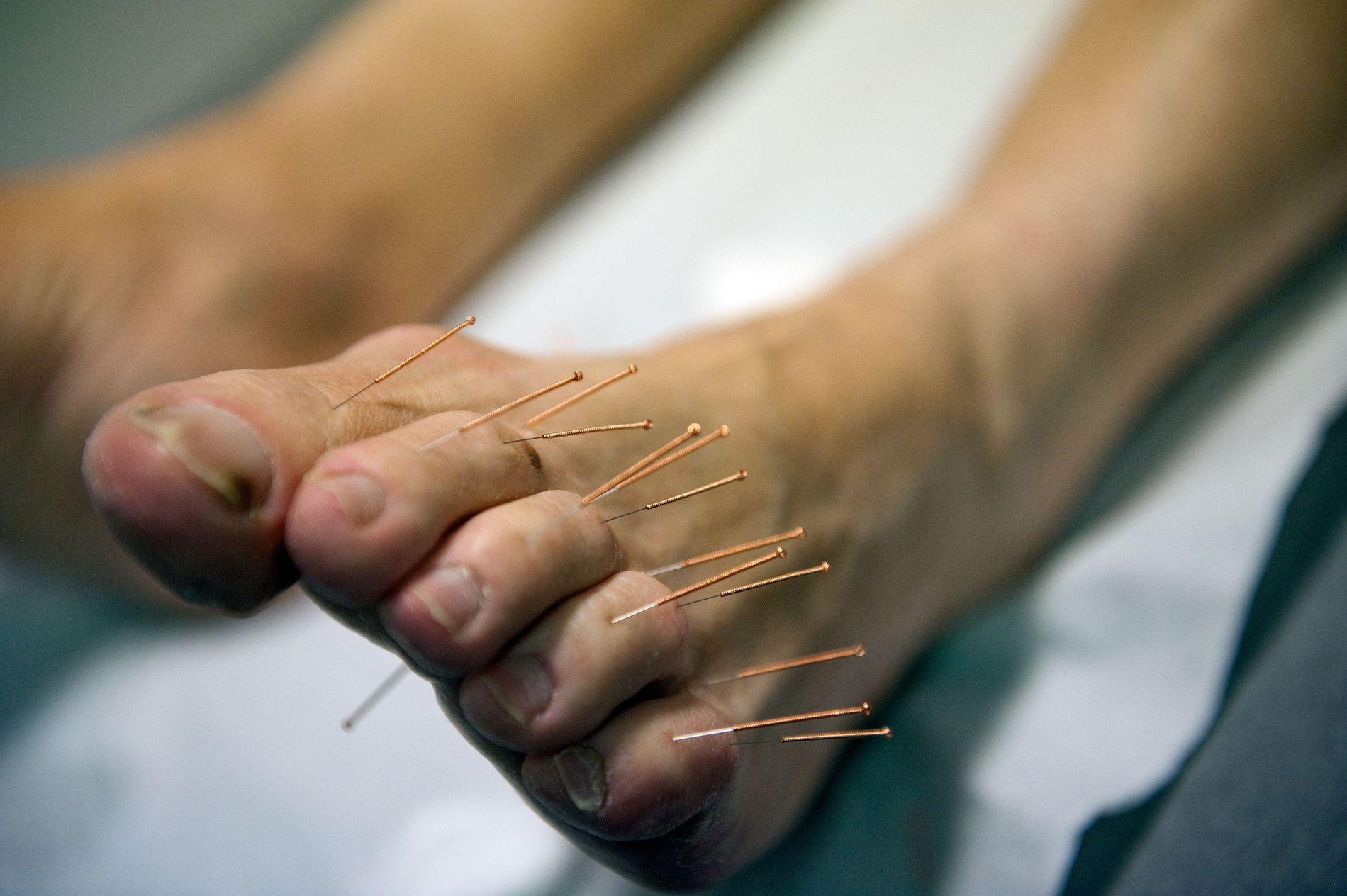 L'acupuncture est utilisée pour traiter les neuropathies entraînées par la chimiothérapie. Elles se caractérisent par des fourmillements ou tiraillements douloureux, souvent localisés dans les doigts et les pieds.