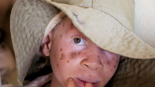 Qu'est-ce que l'albinisme ?