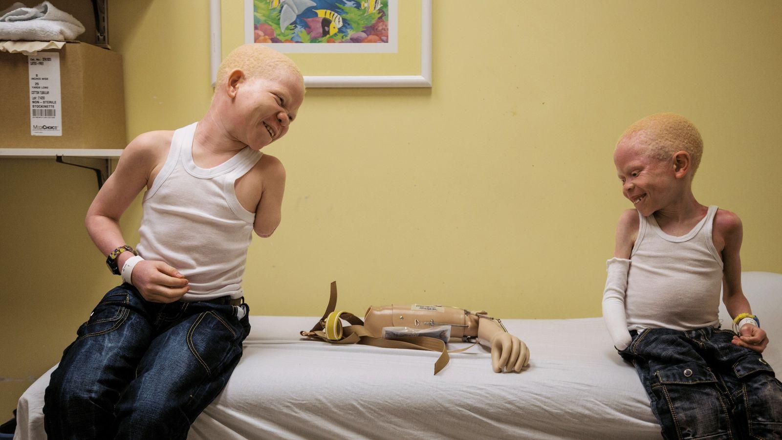 Des ONG luttent contre les violences dont sont souvent victimes les albinos en Afrique. Dans un ...