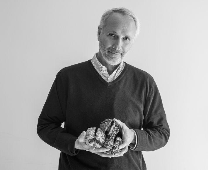 Des modèles imprimés en 3D, basés sur des scintigraphies cérébrales, permettent l'étude de l'autisme depuis 36 ...