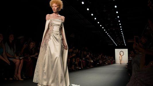 Albinos : pour en finir avec les persécutions