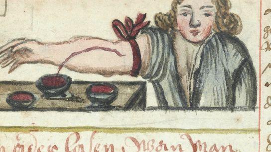 Illustration de la pratique de la saignée, datant d'environ 1675. WELLCOME LIBRARY.