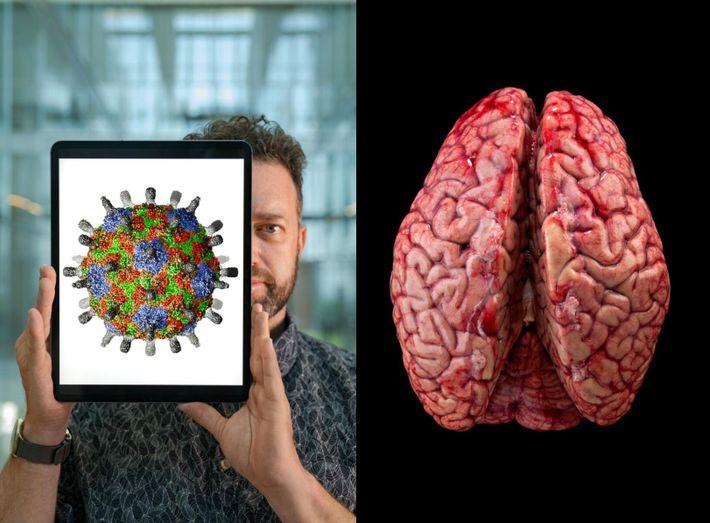 Jason Shepherd, neuro-scientifique à l'université de l'Utah, montre l'image d'une reconstitution en 3D d'une capsule protéique ...