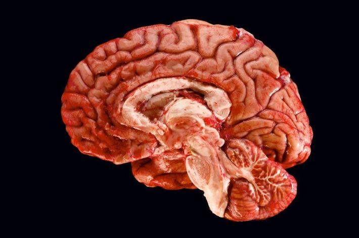 Cette coupe transversale d'un cerveau humain révèle les nombreux domaines qui doivent coopérer pour former et ...