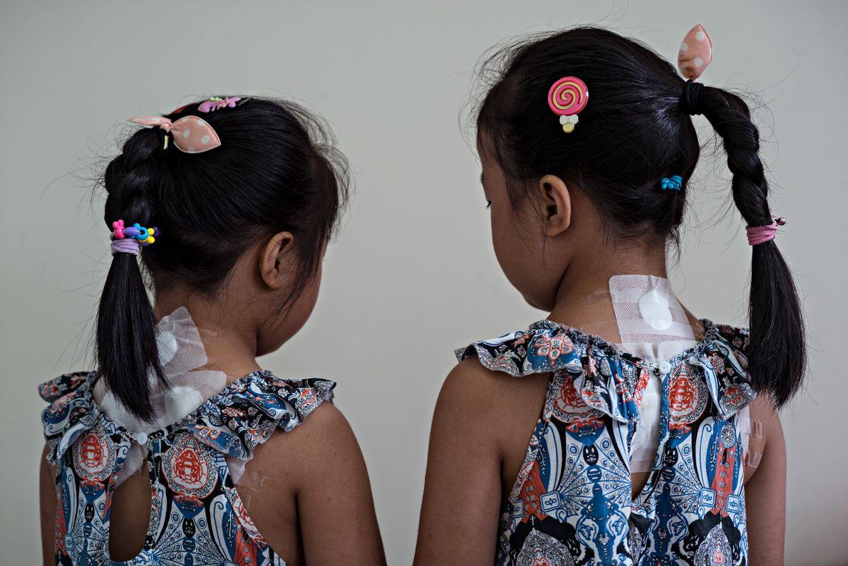 À l'hôpital de l'université de Chengdu de médecine traditionnelle chinoise, les jumelles Zheng Yue et Zheng ...