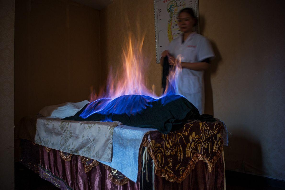 Au cours d'une séance de thérapie par le feu à Chengdu, en Chine, un tissu imbibé ...