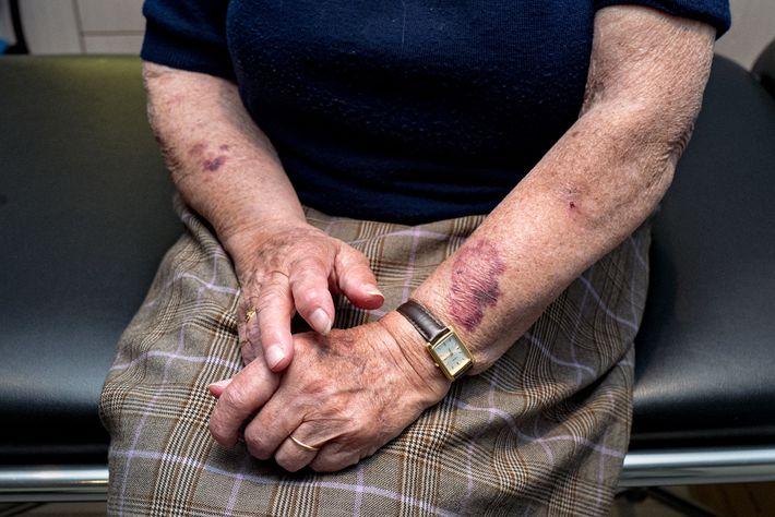 Juliette Schneider s'est présentée au cabinet de la Dr Spihlmann après l'apparition d'hématomes sur ses bras. Au ...