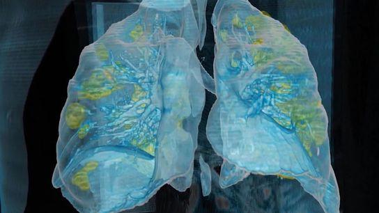 Le coronavirus a causé d'importants dégâts (en jaune) dans les poumons d'un homme de 59 ans décédé ...