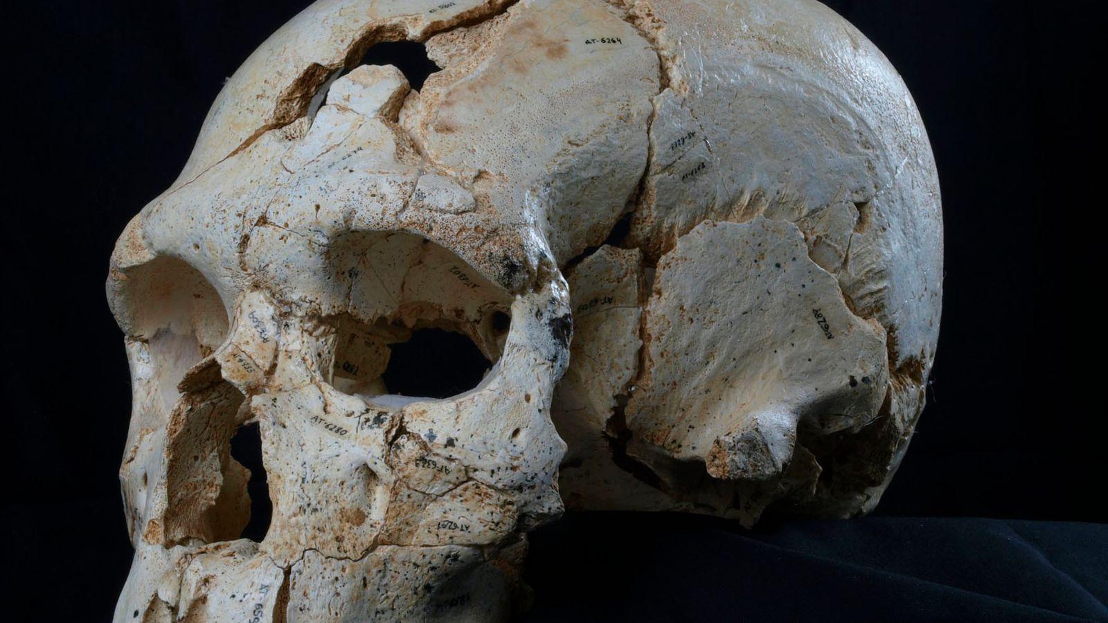 Les deux trous visibles surce crâne sont la preuve du premier meurtre (connu) de l'Histoire.