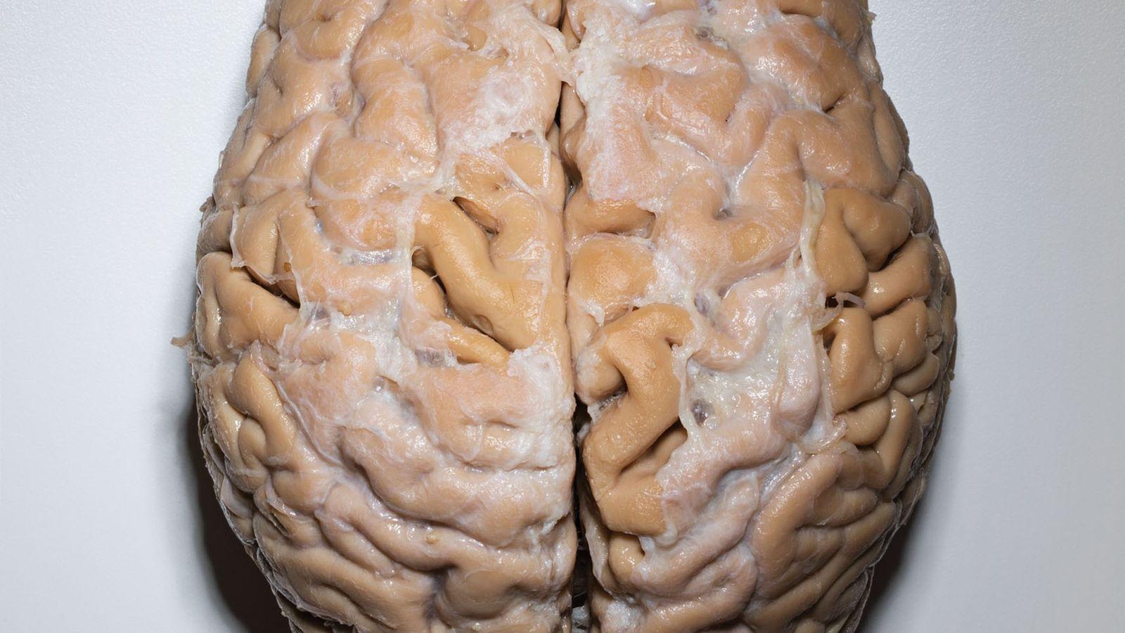 Ce cerveau, donné par un homme de 101 ans, est plus gros que la moyenne pour ...