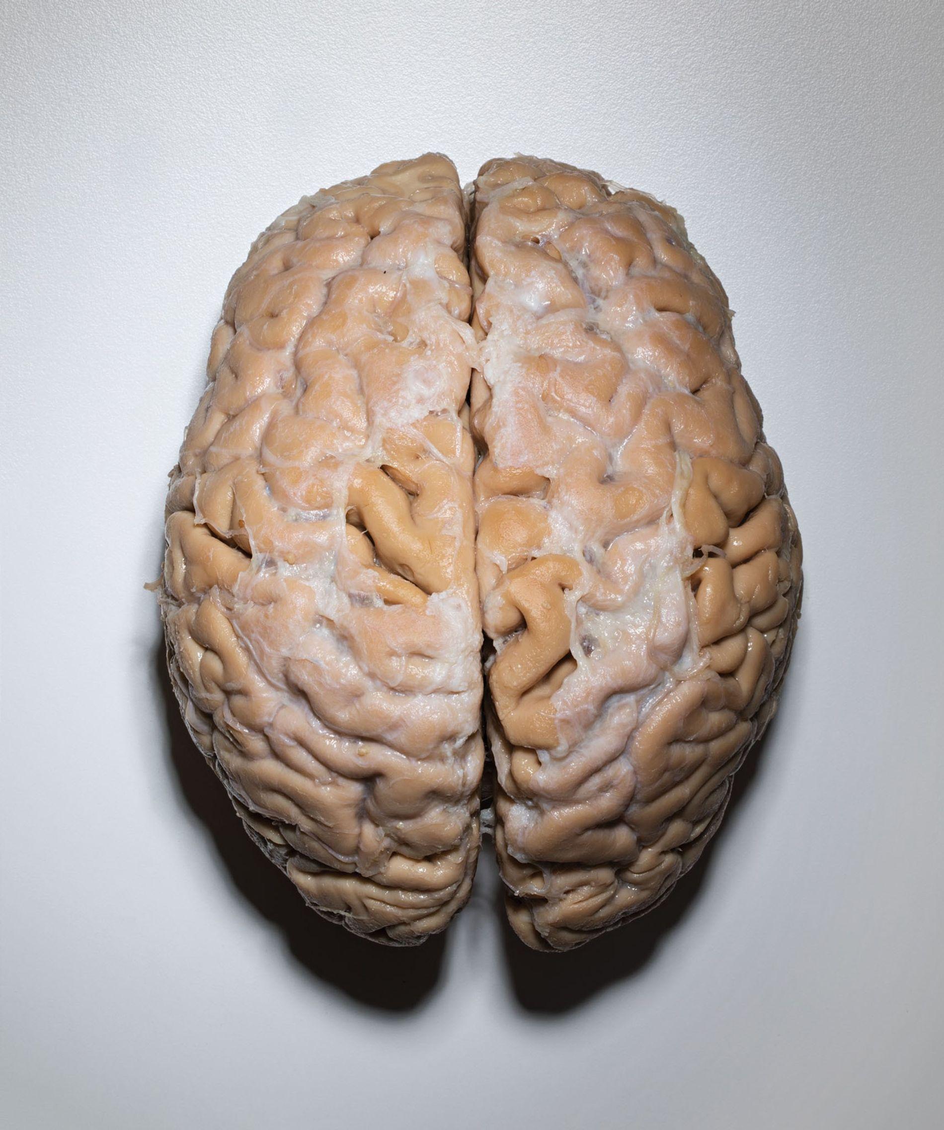 Ce cerveau, donné par un homme de 101 ans, est plus gros que la moyenne pour une personne de cet âge. L'homme était réputé pour avoir encore toutes ses facultés.