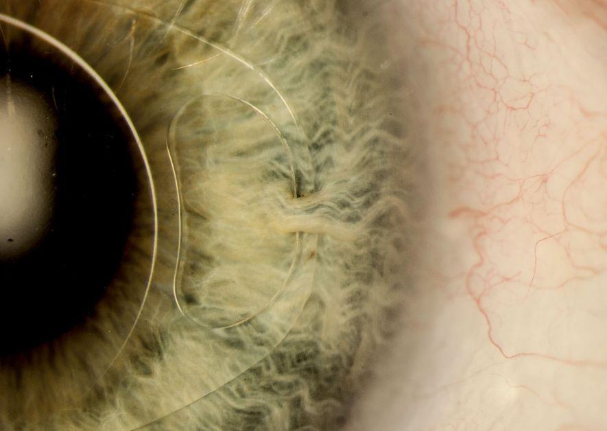 Gros plan sur l'œil d'un homme de 70 ans ayant bénéficié d'un implant intraoculaire après un ...
