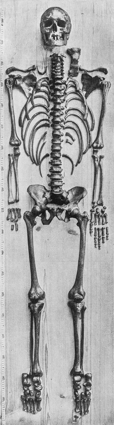 Cette photographie prise en 1895 par l'anatomiste Wilhelm His serait celle du squelette de Bach. Andreas ...