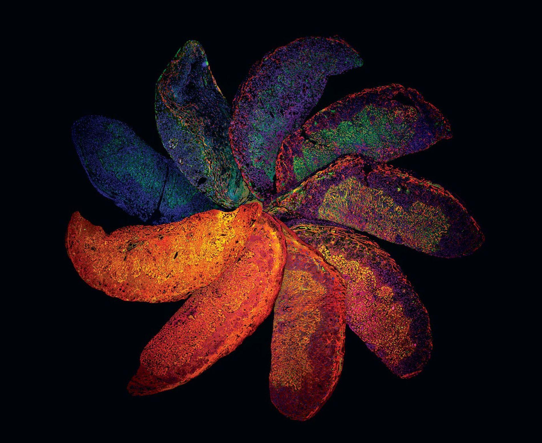 Colorées pour montrer des changements dans leur structure, les tranches de placenta de souris offrent des ...