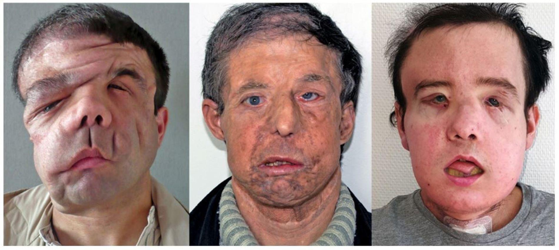 1 Jérôme Hamon avant sa première greffe de face, réalisée en 2010. Ses traits sont déformés par une maladie génétique, la neurofibromatose.  2 À partir de 2016, le greffon montre des signes de rejet chronique.   3 Jérôme Hamon après sa deuxième greffe, au début de l'année 2018. Une rééducation permettra de retrouver la mobilité du visage.