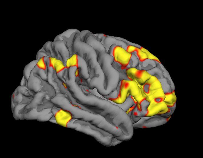 Vue latérale d'un hémisphère cérébral droit, sur lequel sont représentées les zones du cerveau qui sont ...