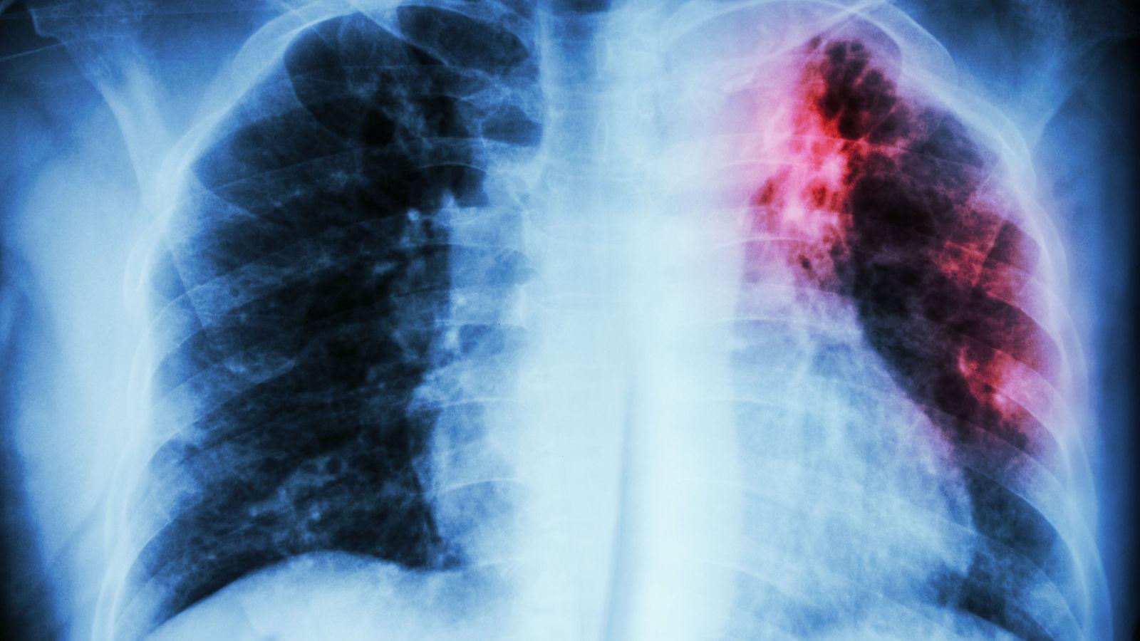 la tuberculose une maladie infectieuse qui peut être mortelle si elle n'est pas dépistée à temps. ...