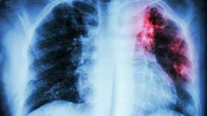 Comment détecter les nouvelles mutations de la tuberculose ?